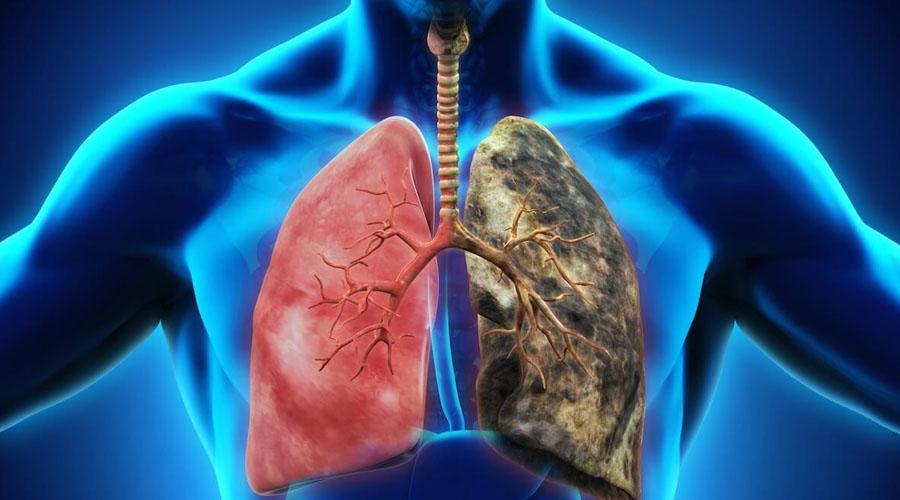 Cambiamenti polmoni quando smetti di fumare